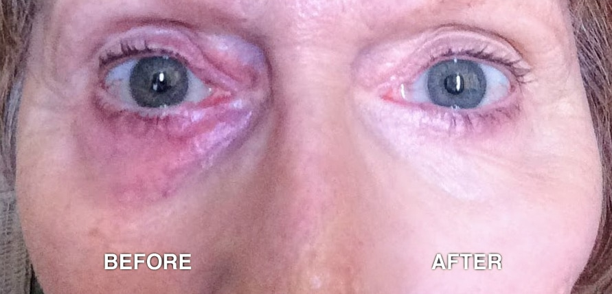 Skin Camouflage for discolouration around the eyes